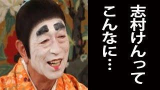 【バカ殿】志村けん『バカ殿』白塗りでもシワ 老化が目立ち…体調不良が原因!?